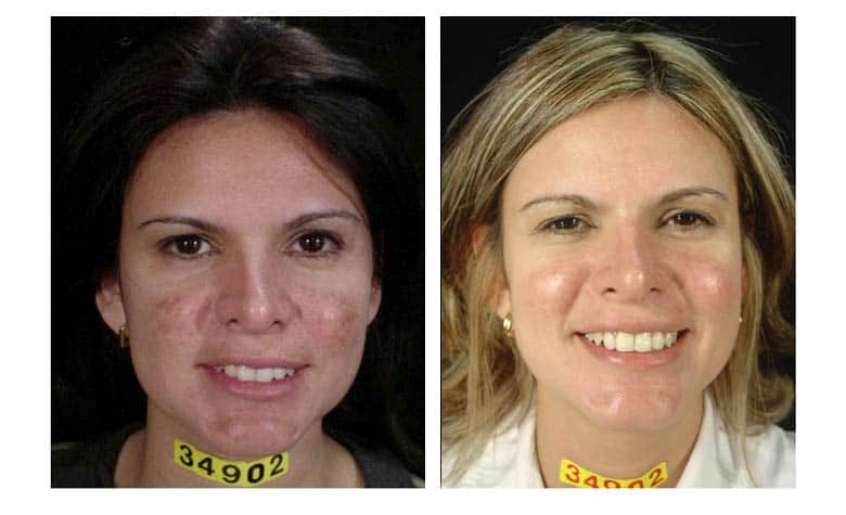 Cosmelan-Before-After-Pigmentation-Removal