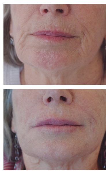 Before and after dermal fillers. A real success story and a very happy Skin Renu patient.