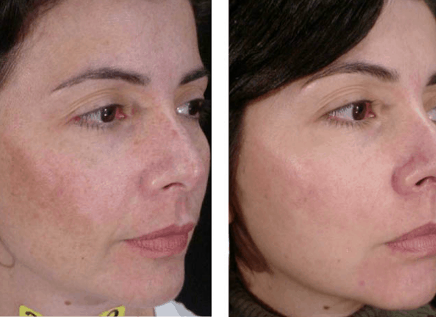 Cosmelan-Pigmentation-Removal-Treatment