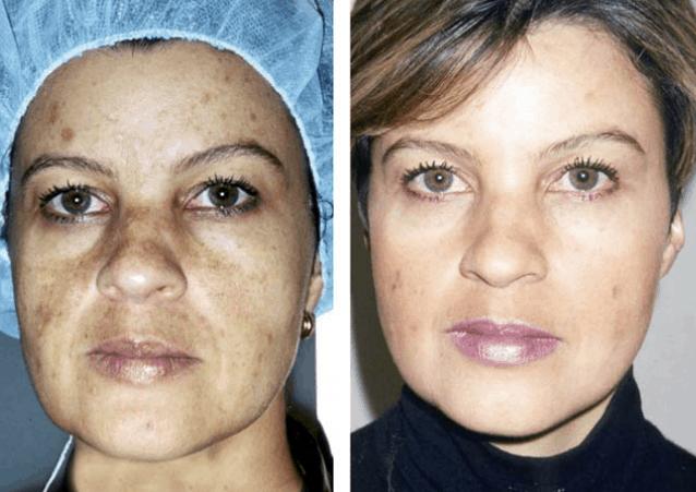 Pigmentation-Removal-Treatment-Cosmelan