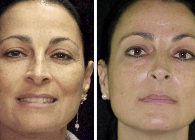 New-Cosmelan-Treatment-For-Pigmentation-Before-After