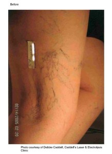 Spider vein - before