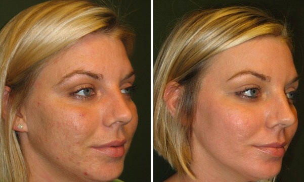 medical peel before + after
