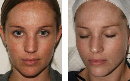 Chemical Skin Peels Medical Peels Skin Renu