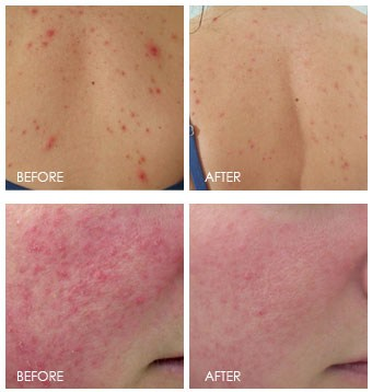 before + after omnilux treatment