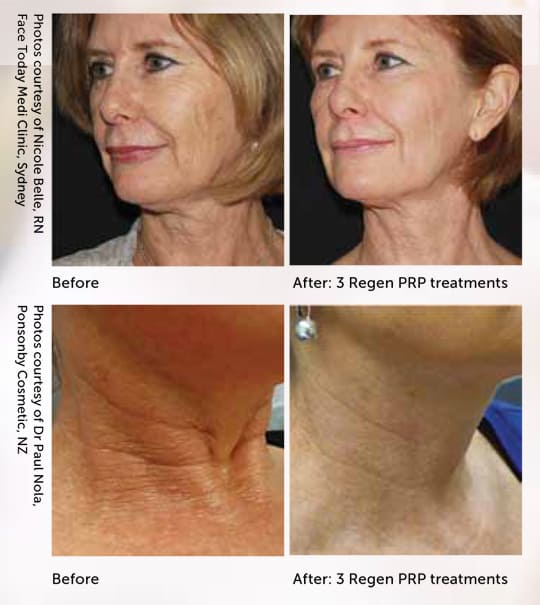 prp-before-after-regen-photos