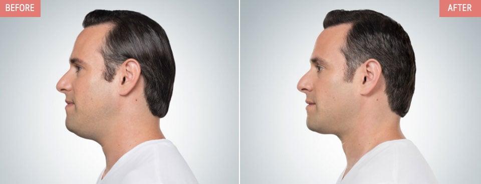 Belkyra-Before-After-Men