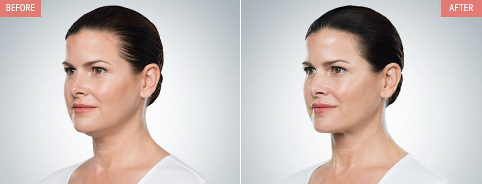 Belkyra-Before-After-Female