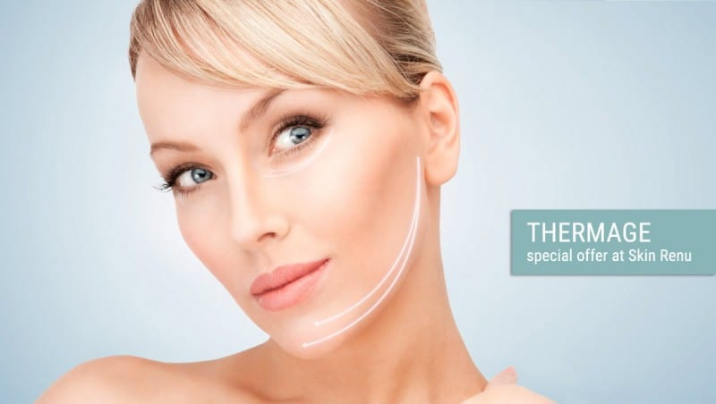 Thermage special at Skin Renu Balmain