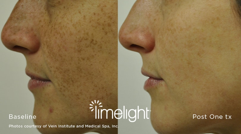 Limelight Before + After