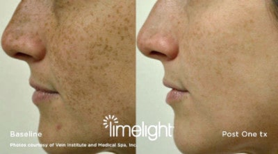 Pigmentation can be reduced at Skin Renu Balmain