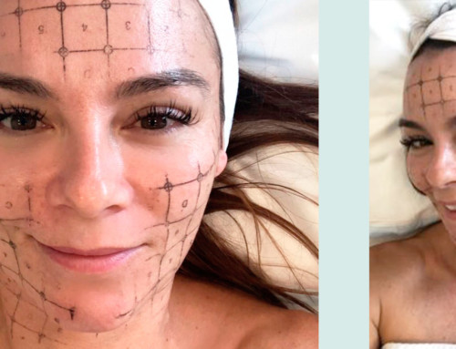 """Renae's World """"The Non-Invasive Facelift That Works!"""""""