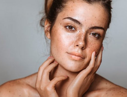 How To Deal With Dark Spots And Pigmentation